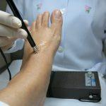 Simptomele si cauzele neuropatiei periferice