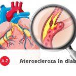 """Colesterolul """"bun"""" poate combate ateroscleroza in diabet"""