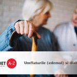 Umflaturile (edemul) si diabetul – umflaturi la nivelul picioarelor, gleznelor si talpilor