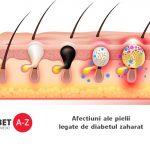 Afectiuni ale pielii legate de diabetul zaharat