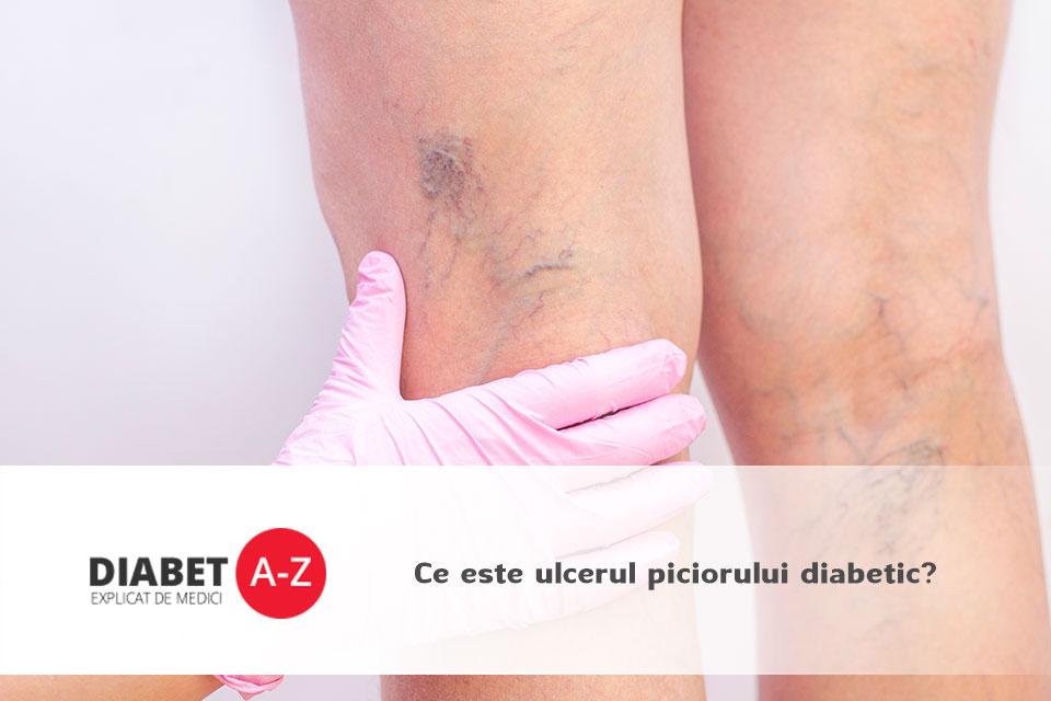 ulcerele piciorului cauzate de circulația deficitară durere severă la ambele picioare