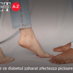 De ce diabetul zaharat afecteaza picioarele?