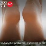 Piciorul diabetic: probleme, tratament si preventie