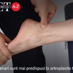 Pacientii octogenari sunt mai predispusi la artroplastia totala a gleznei?
