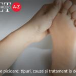 Durerea de picioare: tipuri, cauze și tratament la domiciliu (II)